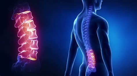 autisum and joint pain picture 5