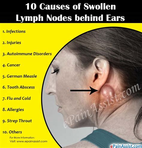 can toenail fungus cause enlarged lymph nodes picture 3