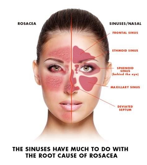 acne graves disease picture 5