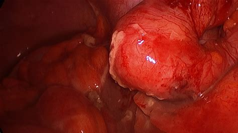 first bowel movement after ruptured appendix picture 8