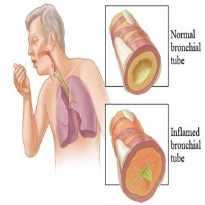 herbal products for bronchitis picture 11