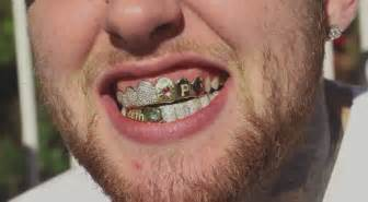 all kinds of teeth grillz and i want picture 15