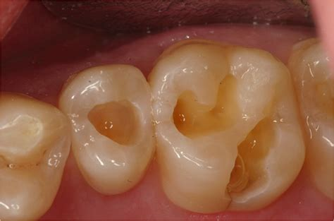 can a bad tooth cause you to have picture 2