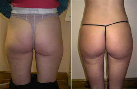 new york, penile penis fat injections by female picture 1