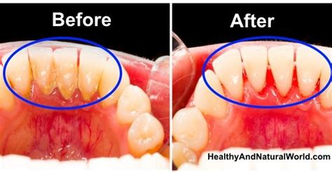 herbal supplements for plaque build up on teeth picture 10