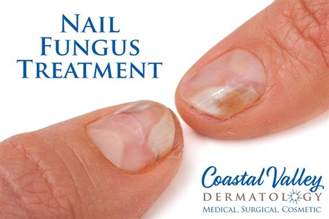 nail laser treatment toenail fungus in georgia picture 2
