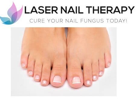 nail fungus laser treatment oklahoma picture 1