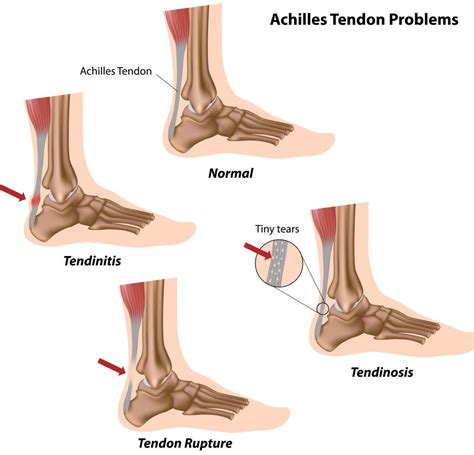 ankle joint effusion and ruptured achilles tendon picture 7
