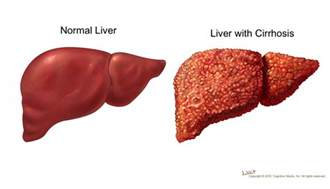 liver with cirrhosis picture 1