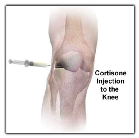 cortisone cause joint pain picture 7