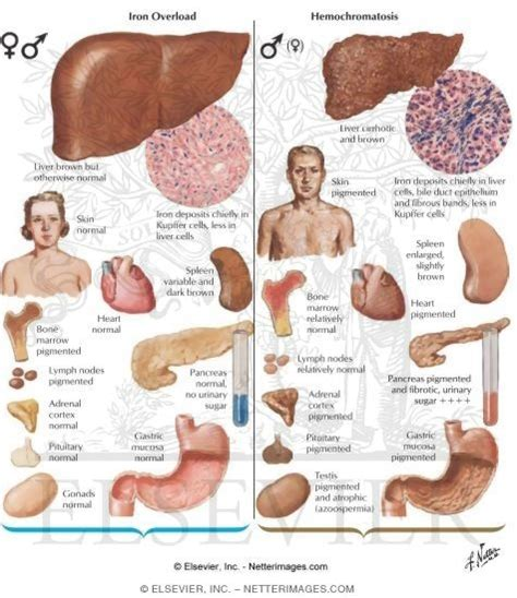 what are some symptoms of liver disease picture 2