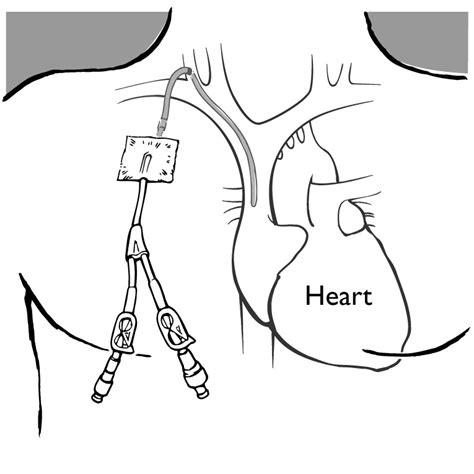 slave bladder torture story picture 6