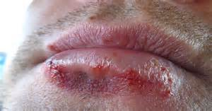 pictures of herpes simplex 2 picture 5