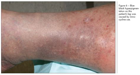 causes of changes of skin condition picture 12