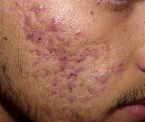 acne vulgaris pictures picture 18