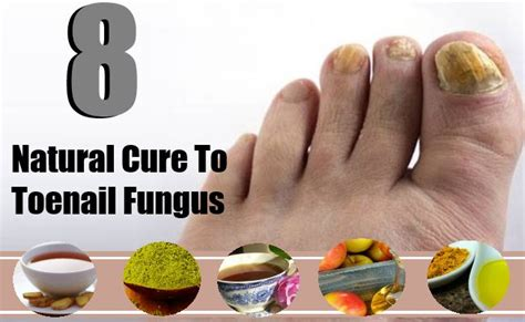 toenail fungus cures picture 13