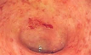 infection of the colon picture 5