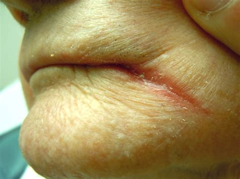 chapped lips symptom of picture 10