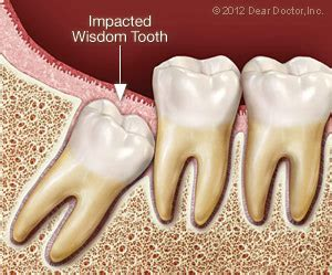 non impacted wisdom teeth picture 9