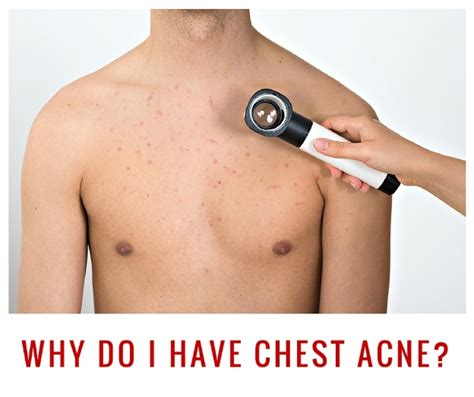 does c4 cause chest acne picture 2