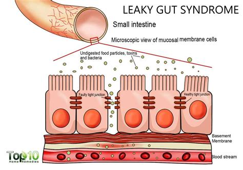 what are the symptoms of intestinal picture 6