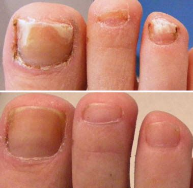 clear toenail fungus picture 5