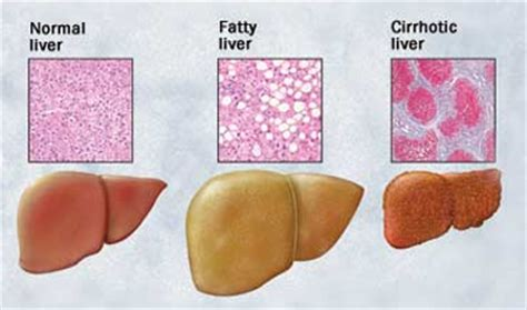 fatty liver surgery picture 7