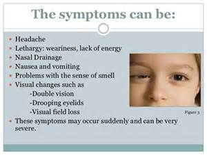 children thyroid problems picture 5