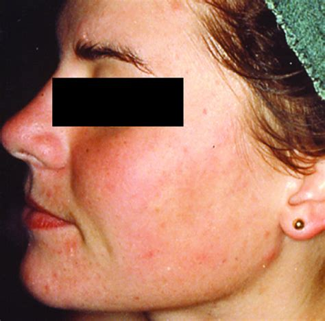 acne treatment laser picture 18