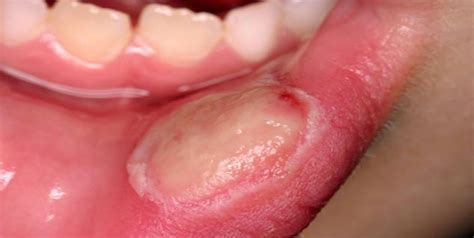 herpes and canker sores picture 9