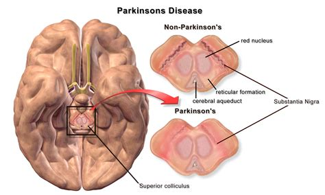 australian doctor parkinson cure 2013 picture 6