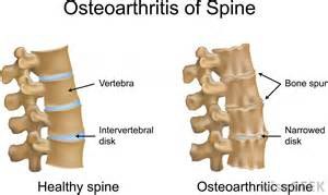 uncovertebral osteophytic ridging picture 5
