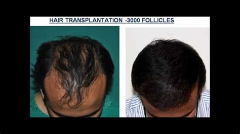 permantly remove hair best results? herbal picture 13