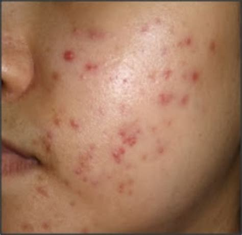 acne at 36 picture 2