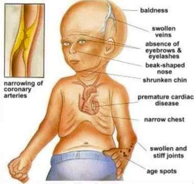 Loss of muscle in elderly picture 10