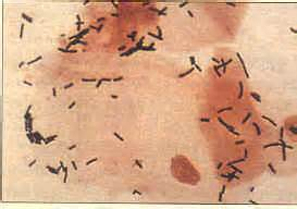 yeast infection cloudy urine herpes picture 6