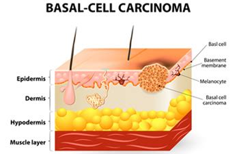treating advanced cases of basal cell skin cancer picture 4