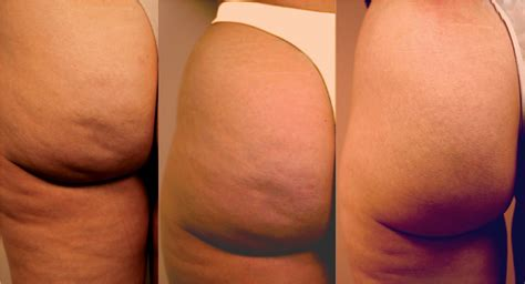 difference between dimpling of breast and stretch marks picture 10
