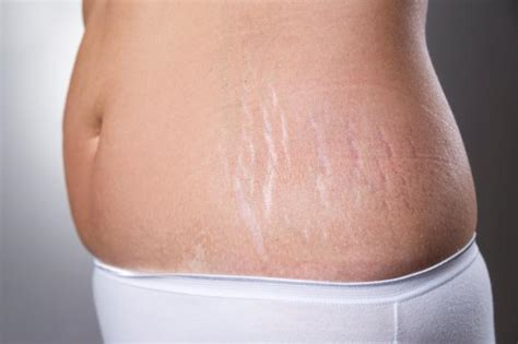 painful stretch marks picture 6