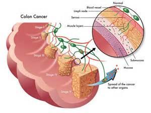 colon cancer has 10 stages in greece why? picture 5