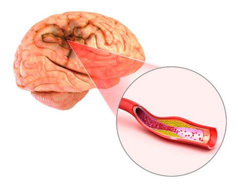 blood clot in head symptoms picture 6