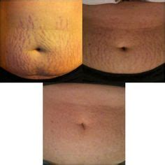 franks stretch mark picture 14