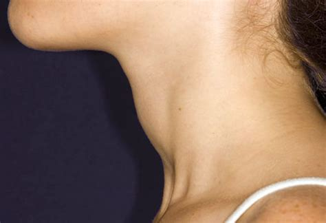 what are treatments to thyroid enlargement picture 9
