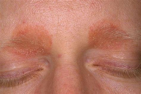 common skin rashes picture 3