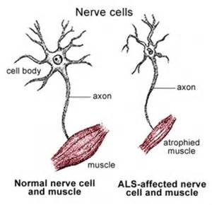 history of muscle disorders picture 15