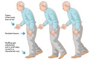 bladder problems in patients with parkinson's disease picture 3