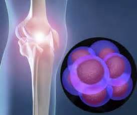 joint pain from statin picture 3