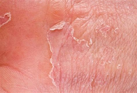 feet skin problems picture 10