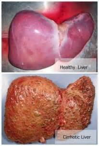 how to have a healthy liver picture 7