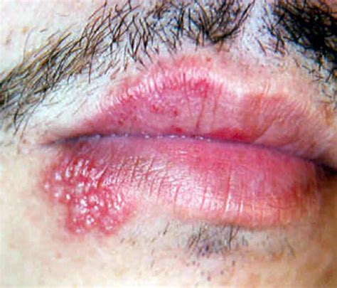 herpes symplex picture 1